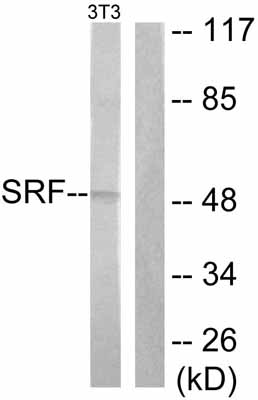 Western blot - Anti-Serum Response Factor SRF antibody (ab53147)