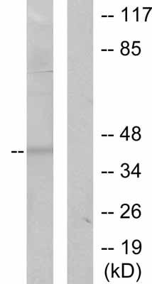 Western blot - Anti-MMP23 antibody (ab53148)