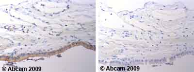 Immunohistochemistry (Formalin/PFA-fixed paraffin-embedded sections) - Anti-Bax antibody (ab53154)