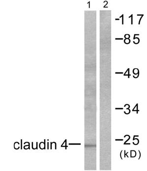 Western blot - Anti-Claudin 4 antibody (ab53156)