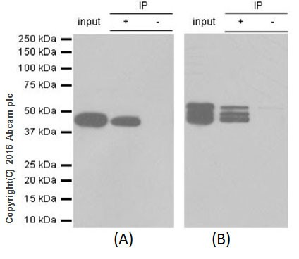 Immunoprecipitation - Anti-Cytokeratin 8+18 antibody [EP1628Y] (ab53280)