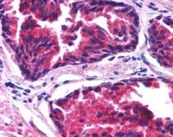 Immunohistochemistry (Formalin/PFA-fixed paraffin-embedded sections) - Anti-SNX26 antibody (ab53513)