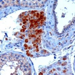 Immunohistochemistry (Formalin/PFA-fixed paraffin-embedded sections) - Anti-SECISBP2 antibody (ab53534)