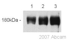 Western blot - Anti-p180 CAF1 antibody (ab53613)