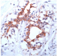 Immunohistochemistry (Formalin/PFA-fixed paraffin-embedded sections) - Anti-FGFR3 antibody, prediluted (ab53636)