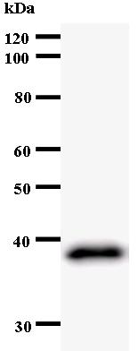 Western blot - Anti-ZW10 antibody [3363C4a] (ab53676)