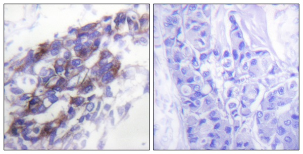 Immunohistochemistry (Formalin/PFA-fixed paraffin-embedded sections) - Anti-Cytokeratin 8 antibody (ab53708)