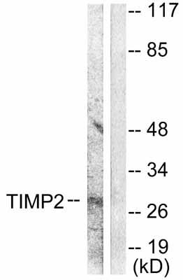 Western blot - Anti-TIMP2 antibody (ab53730)