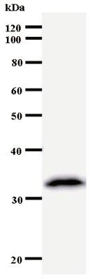 Western blot - Anti-KPNA4 antibody [2500D3a] (ab53751)