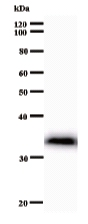 Western blot - Anti-ZNF81 antibody [3426C1a] (ab53757)
