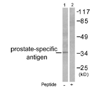 Western blot - Anti-Prostate Specific Antigen antibody (ab53774)