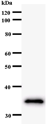 Western blot - Anti-GMEB2 antibody [364C1a] (ab54281)