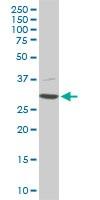 Western blot - Anti-Cdk4 antibody (ab54515)