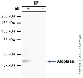 Immunoprecipitation - Anti-Aldolase antibody (ab54770)