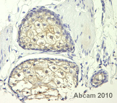 Immunohistochemistry (Formalin/PFA-fixed paraffin-embedded sections) - Anti-CALM2 antibody (ab54921)