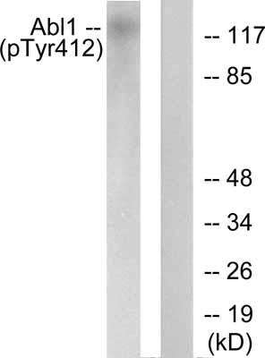 Western blot - Anti-c Abl (phospho Y412) antibody (ab55284)