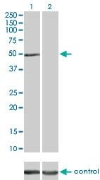 Western blot - Anti-Integrin linked ILK antibody (ab55292)