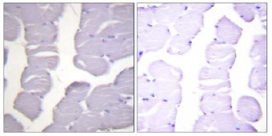 Immunohistochemistry (Formalin/PFA-fixed paraffin-embedded sections) - Anti-IKK alpha + IKK beta (phospho S180 + S181) antibody (ab55341)