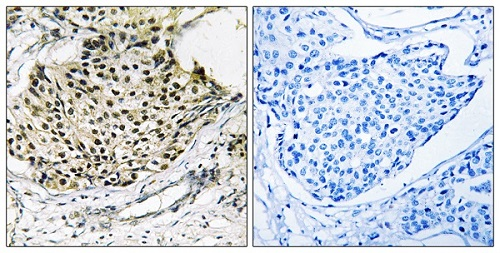 Immunohistochemistry (Formalin/PFA-fixed paraffin-embedded sections) - Anti-IKK gamma (phospho S31) antibody (ab55342)