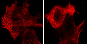 Immunocytochemistry/ Immunofluorescence - Anti-non-muscle Myosin IIA antibody (ab55456)