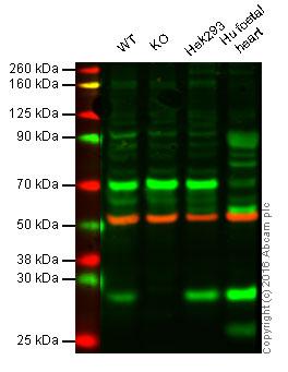 Western blot - Anti-Ndufs4 antibody (ab55540)