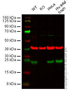 Western blot - Anti-Rab4 antibody (ab55656)