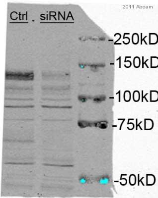 Western blot - Anti-eIF4ENIF1 antibody (ab55881)