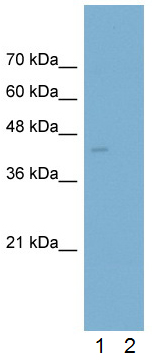 Western blot - Anti-Ornithine Carbamoyltransferase antibody (ab55914)