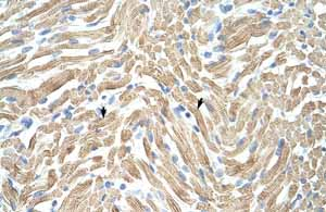 Immunohistochemistry (Formalin/PFA-fixed paraffin-embedded sections) - Anti-Tropomyosin 1 (alpha) antibody (ab55915)