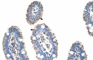 Immunohistochemistry (Formalin/PFA-fixed paraffin-embedded sections) - Anti-SLC22A1 antibody (ab55916)