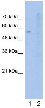Western blot - Anti-SLC22A1 antibody (ab55916)