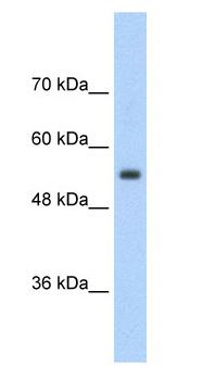 Western blot - Anti-SLC13A3 antibody (ab56017)