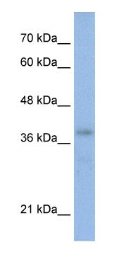 Western blot - Anti-BRN3B / POU4F2 antibody (ab56026)