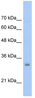 Western blot - Anti-NSBP1 antibody (ab56031)