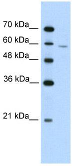 Western blot - Anti-IRX4 antibody (ab56032)