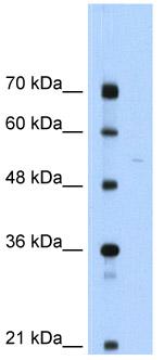 Western blot - Anti-Soluble Liver/Pancreas Antigen antibody (ab56033)