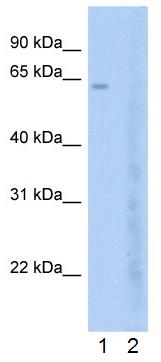 Western blot - Anti-BRD7 antibody - ChIP Grade (ab56036)