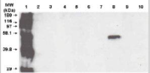 Western blot - Anti-Cytochrome P450 3A5 antibody [F18 P3 B6] (ab56076)
