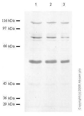 Western blot - Anti-Matriptase 2 antibody (ab56181)