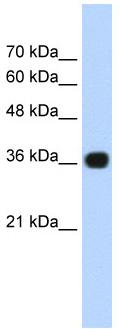 Western blot - Anti-TNRC5 antibody (ab56238)