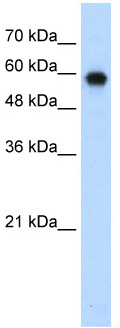 Western blot - Anti-SMARCD2 antibody (ab56241)