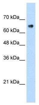 Western blot - Anti-ZNF326 antibody (ab56246)
