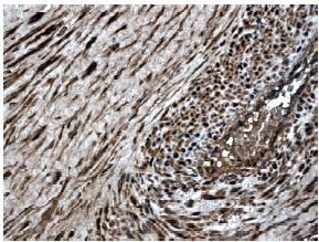 Immunohistochemistry (Formalin/PFA-fixed paraffin-embedded sections) - Anti-MMP8 antibody [MM0023-7A11] (ab56303)