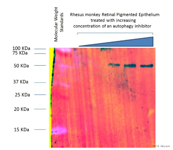 Western blot - Anti-SQSTM1 / p62 antibody (ab56416)