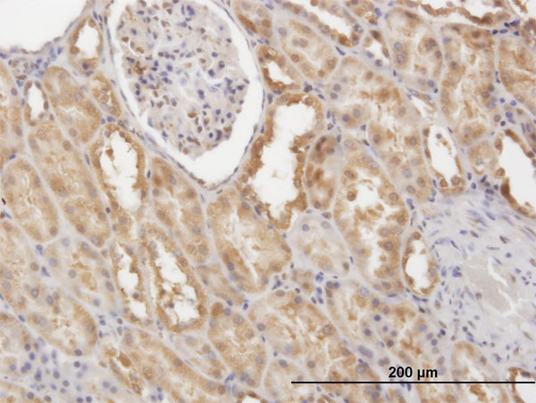 Immunohistochemistry (Formalin/PFA-fixed paraffin-embedded sections) - Anti-FLIP antibody (ab56531)