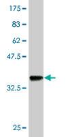 Western blot - Anti-RICTOR antibody (ab56578)