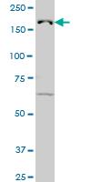 Western blot - Anti-KDM5B / PLU1 / Jarid1B antibody (ab56759)