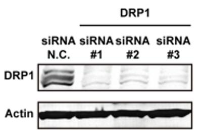 Western blot - Anti-DRP1 antibody (ab56788)