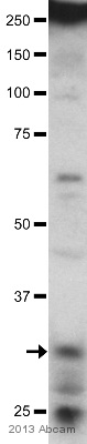 Western blot - Anti-NMNAT2 antibody (ab56980)