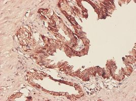 Immunohistochemistry (Formalin/PFA-fixed paraffin-embedded sections) - Anti-PHGDH antibody (ab57030)